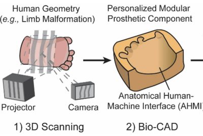 Personalization of Wearable Sensors using 3D Scanning and 3D Printing Technology